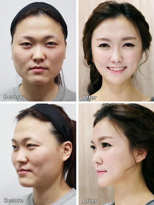 Потеряли лицо: китаянки не прошли паспортный контроль после пластической операции