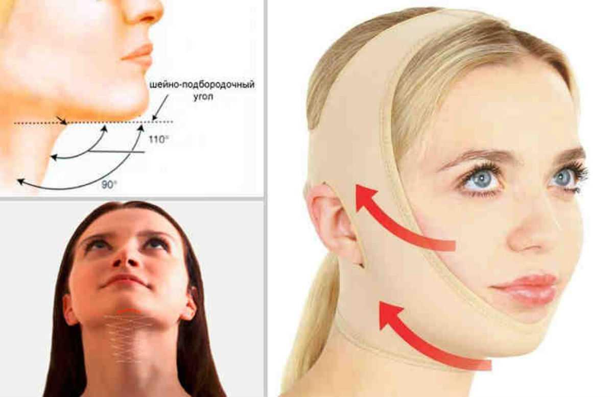 Французская повязка красоты, способна подтянуть овал лица без операций