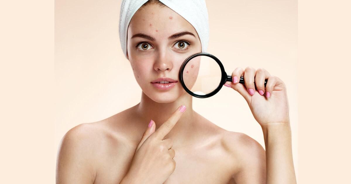Маски для проблемной кожи: из чего приготовить и как использовать, примеры и советы
